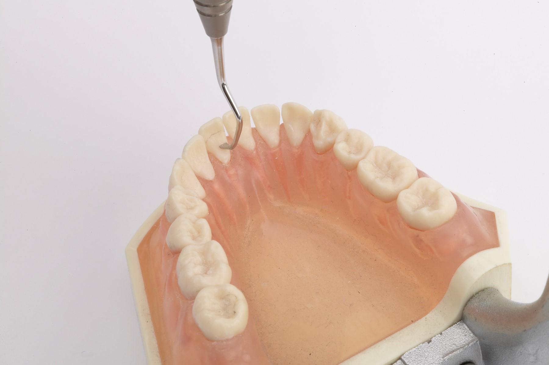 Anterior Lingual Stain Remover (ALSR)